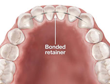 Bonded Retainers Coral Gables, Florida