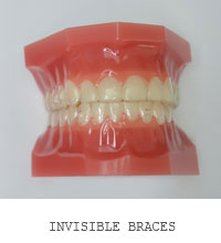 Invisible Braces Coral Gables, Florida