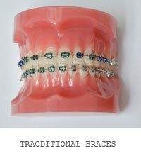 Tracditional Braces Coral Gables, Florida